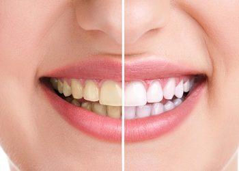 Orthodontistemontreal